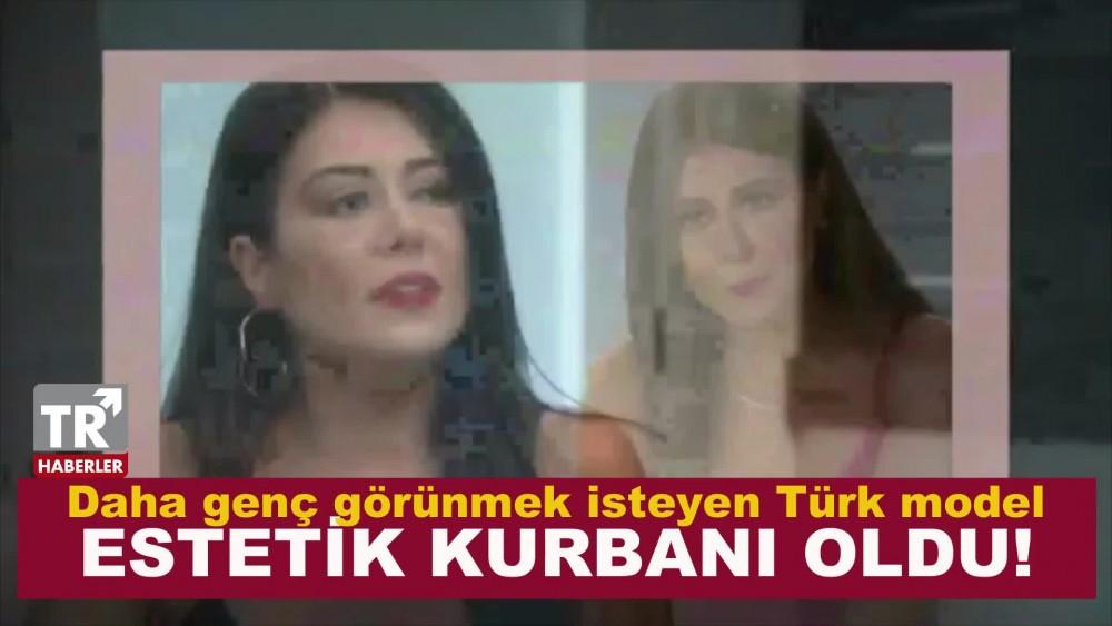 Daha genç görünmek isteyen Türk model estetik kurbanı oldu